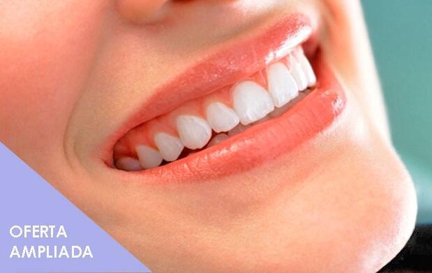 Blanqueamiento dental perfecto con led